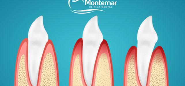 La enfermedad de las encías o enfermedad periodontal