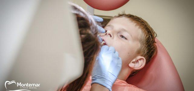 Clínica dental Montemar: ¿Qué son los selladores dentales?
