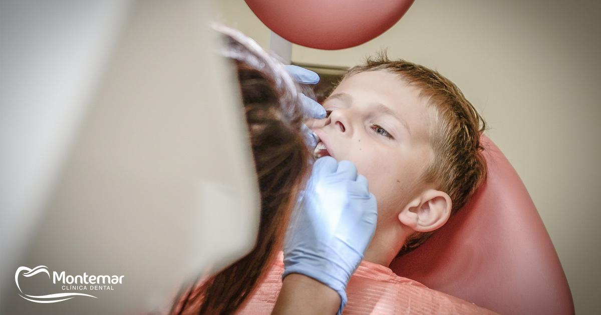 ¿Qué son los selladores dentales?
