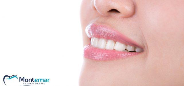 Invisalign, el secreto para lucir una sonrisa perfecta