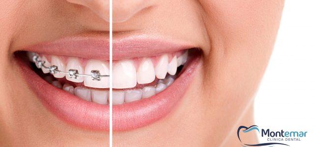 La salud bucodental cuando se usa ortodoncia estética