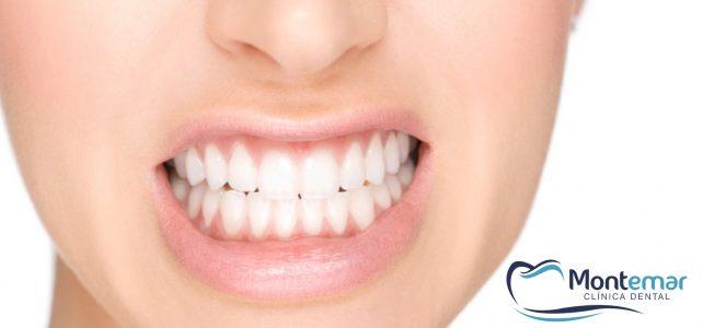El bruxismo y sus consecuencias en la salud dental