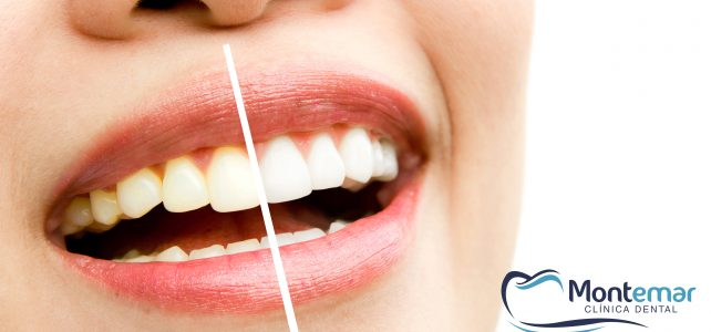 Blanqueamiento dental. Mitos y realidades.