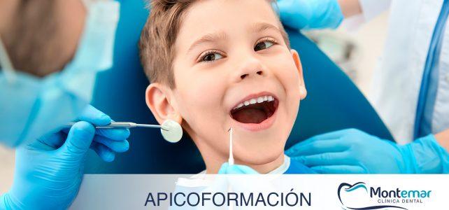 Apicoformación. Tratamiento bucodental para dientes inmaduros.