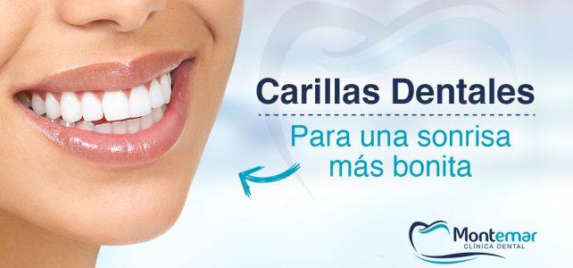 Carillas dentales. Elimine las imperfecciones de su sonrisa