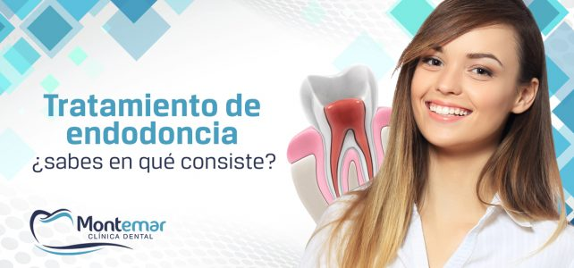 Tratamiento de endodoncia: mantén tu pieza dental a salvo