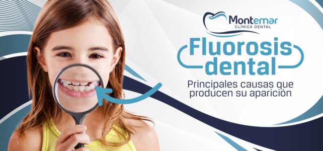 Fluorosis dental: la cara B del exceso de flúor sobre tus dientes