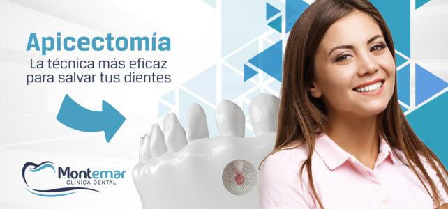 Apicectomía: la técnica odontológica para salvar tus dientes