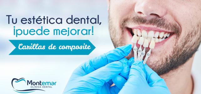 Carillas de composite: el tratamiento de estética dental que mejora tu sonrisa