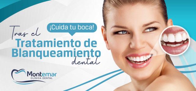 Cuidados post blanqueamiento dental. ¡No dejes de sonreír!