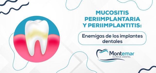 Mucositis periimplantaria y periimplantitis: enemigas de los implantes dentales
